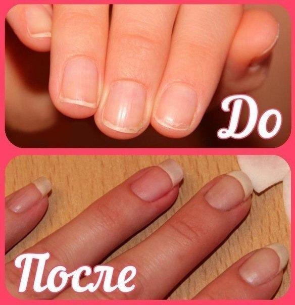 Как отрастить ногти в домашних условиях за пару дней